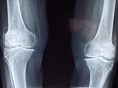 Visite ortopediche a Chieri
